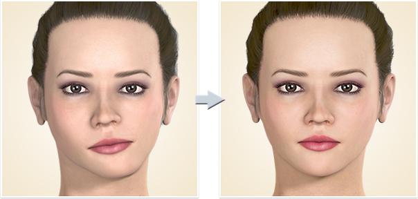 顎矯正手術 顔面非対称上下顎非対称