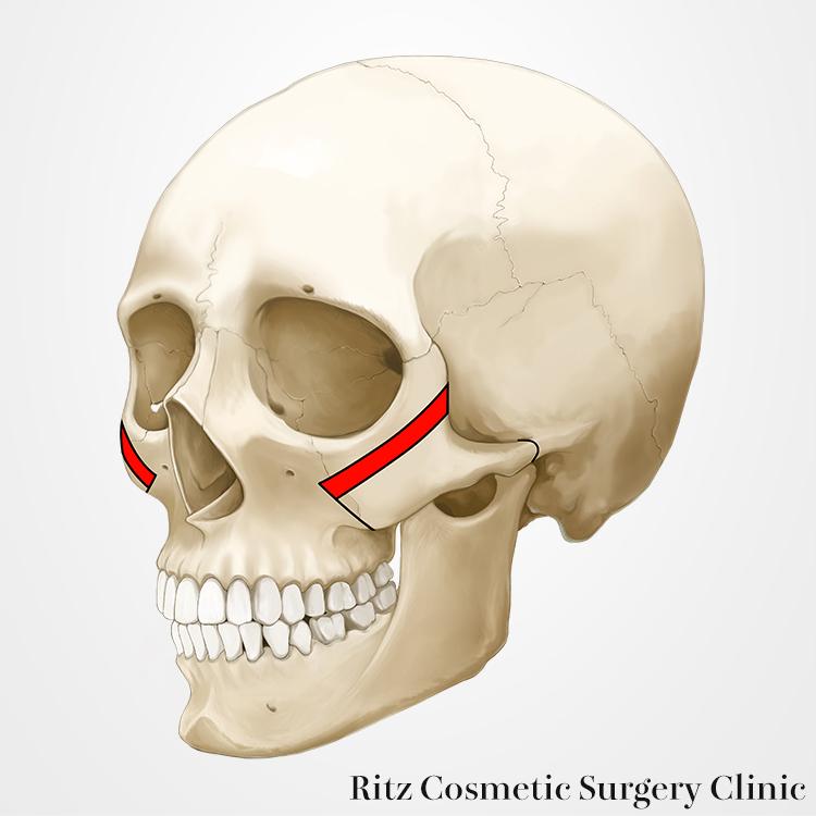 頬骨縮小術(Reduction)