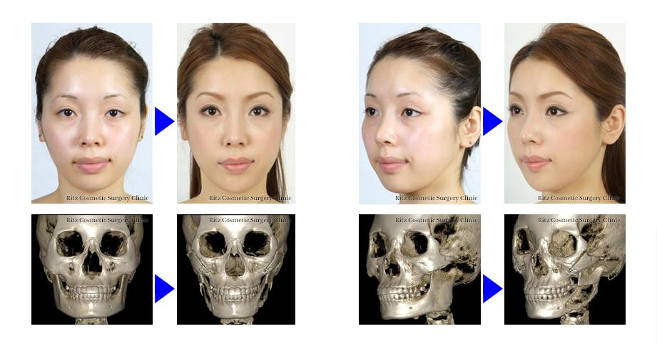頬骨の骨切り術では何が改善されるのか?