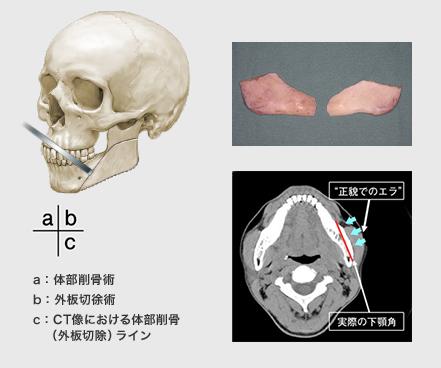 a:体部削骨術/b:外板切除術/c:CT像における体部削骨(外板切除)ライン