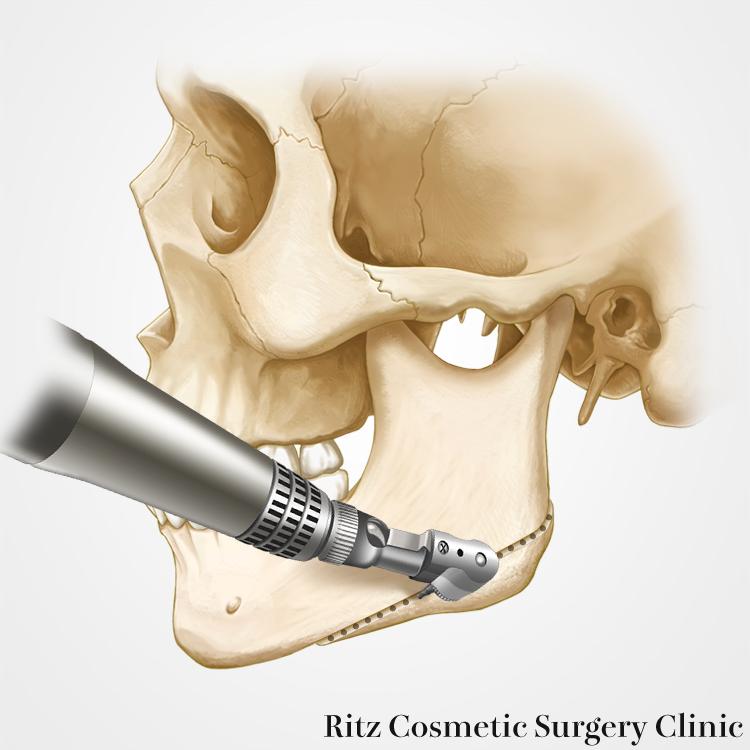 外板切除(分割法):正面顔縮小術