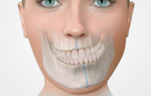 Two-Jaw Surgeryの適応症