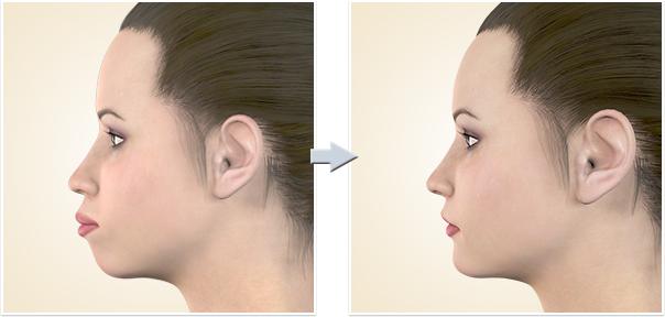 顎矯正手術 上下顎前突上下顎前突1
