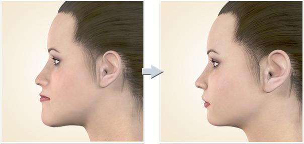 顎矯正手術 上下顎前突上下顎前突2