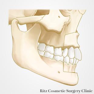 上顎・下顎前突同時手術