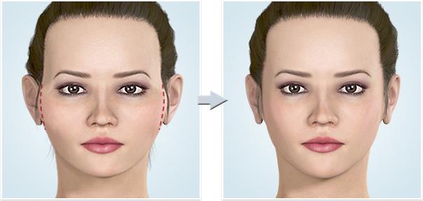 顔面輪郭形成術 頬骨(ほおぼね)