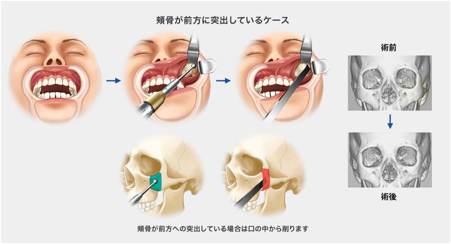 頬骨が前方に突出しているケース:頬骨が前方への突出している場合は口の中から削ります