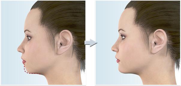 顔面輪郭形成術 オトガイ(あご)前進(顎を前に出す)