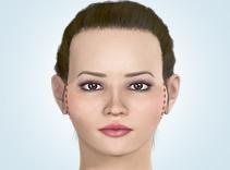 頬骨(ほおぼね)