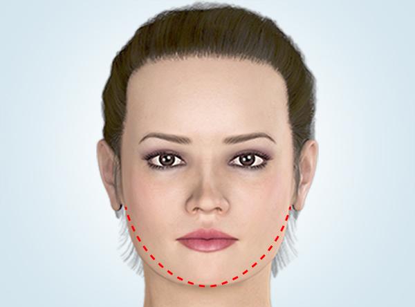 究極の最大下顎縮小術