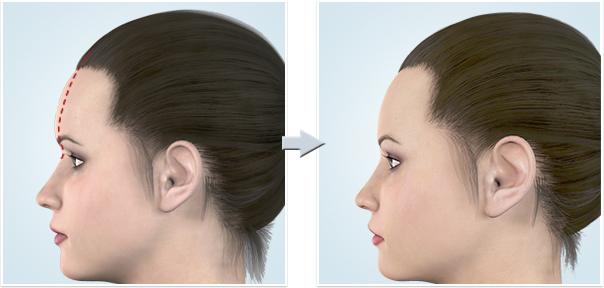 顔面輪郭形成術額(おでこ)減量1