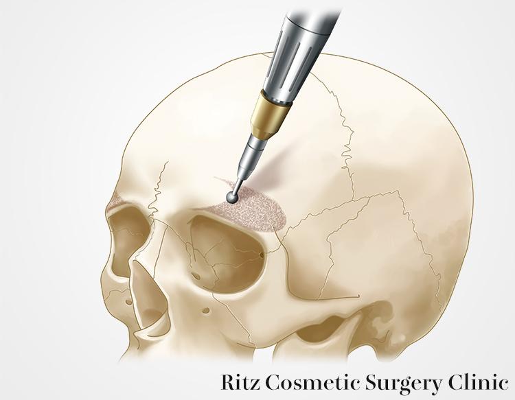 冠状切開後に、前頭骨突出部をラウンドバーにて削る