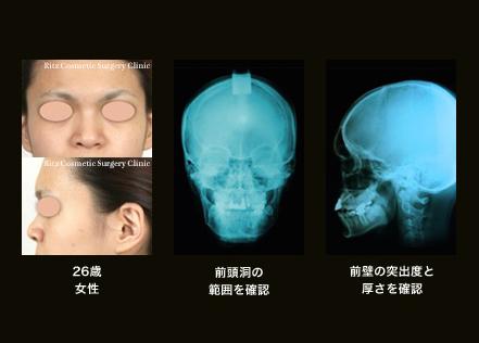 26歳女性/前頭洞の範囲を確認/前壁の突出度と厚さを確認