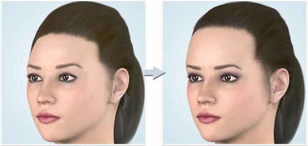 顔面輪郭形成術 額(おでこ)
