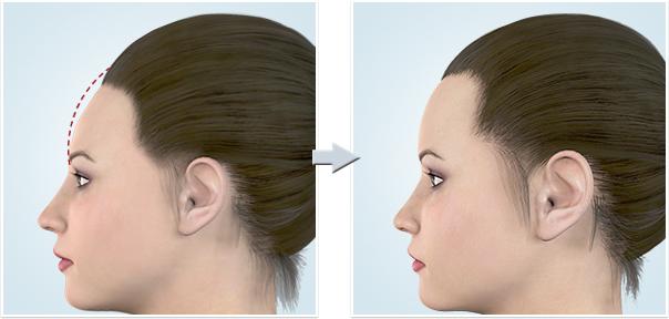 顔面輪郭形成術額(おでこ)増大1
