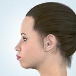 上下顎前突1