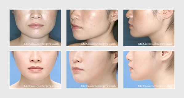 下顎形成術(エラ):拡大下顎角切除+外板切除+咬筋減量+バッカルファット切除