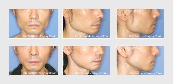 下顎形成術(エラ):拡大下顎角切除+外板切除+咬筋減量