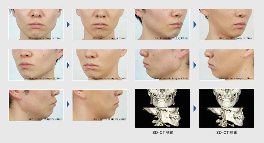 下顎形成術(エラ):下顎角切除+外板切除+咬筋減量