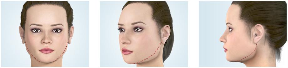 エラの骨切り術では、何が改善されるのか