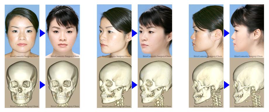 下顎角形成術