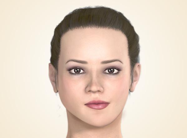 顔面非対称