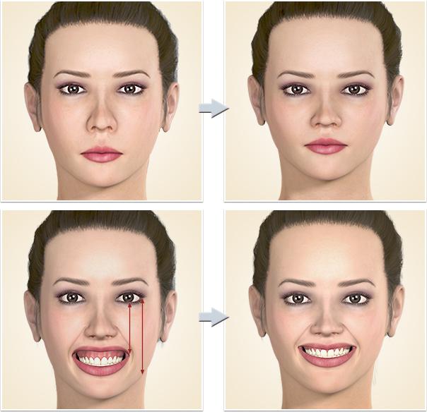 顎矯正手術 面長、中顔面短縮、ガミースマイル