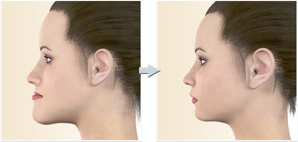 顎矯正手術 下顎前突(受け口)SSRO