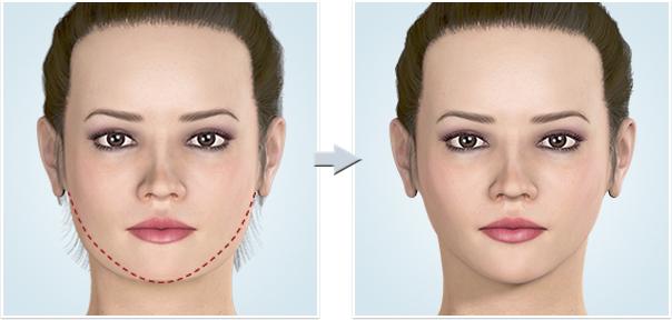 顔面輪郭形成術 最強の小顔手術:MMR法