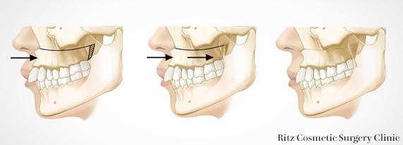 LeFort1 型骨切り術