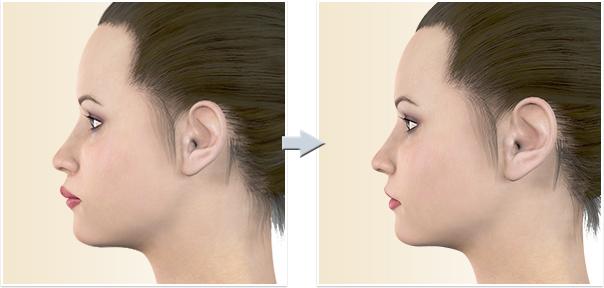 顎矯正手術 上顎前突(出っ歯)ルフォー1