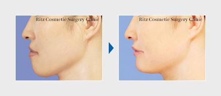 骨格性下顎前突症:前歯部歯槽骨切り術+オトガイ水平骨切り術