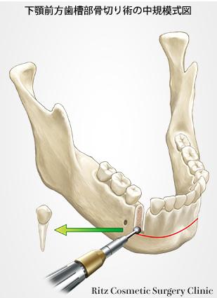 下顎前歯部歯槽骨切り術の中規模式図