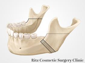 下顎枝矢状分割法(SSRO)