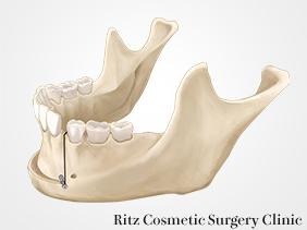 下顎前方歯槽部骨切り術