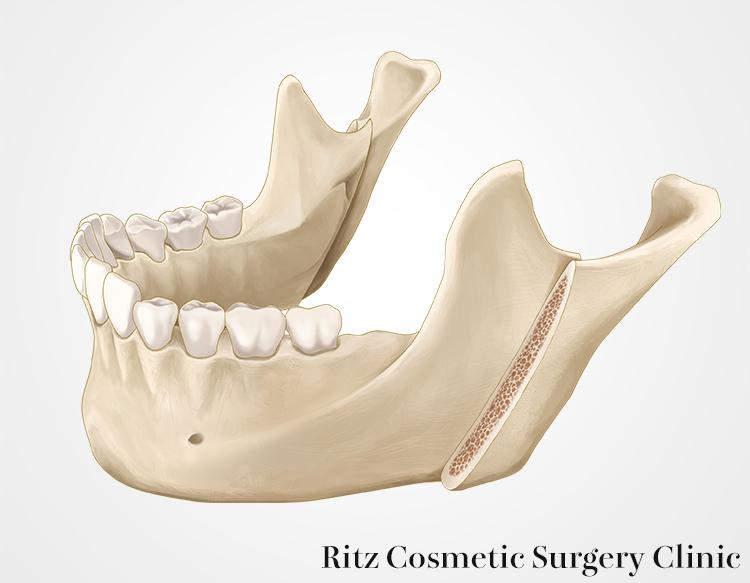 下顎枝垂直骨切り術(IVRO)