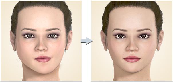 顎矯正手術 顔面非対称下顎非対称