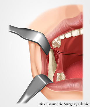 下顎枝内側の骨膜下剥離、剥離は頸骨まで