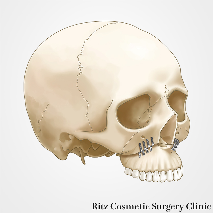 骨片の固定・縫合