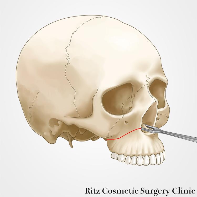 骨切りのデザインと骨切り
