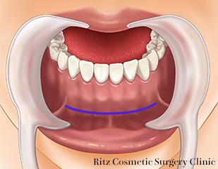 顎(あご)プロテーゼ切開とインプラント挿入 約1cmの粘膜切開を行います