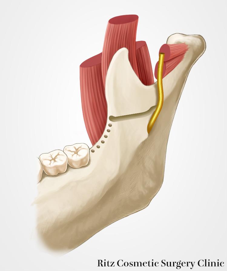 内側皮質骨の水平骨切り