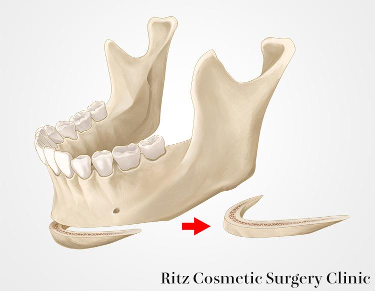 b:中間骨片を摘出します(中抜き法)